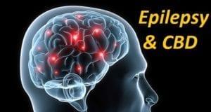CBD & Epilepsy
